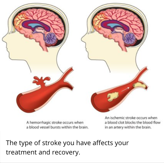 Stroke from CDC website